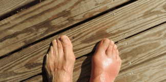 Discover How Gout in Young People Is On the Rise