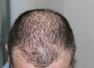 How Hair Loss Affects Men's Mental Health