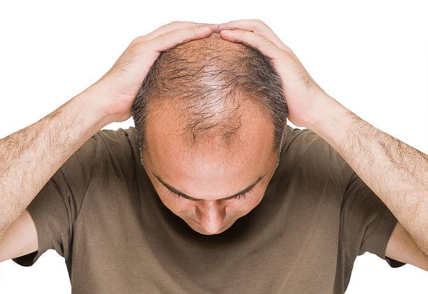 The Leading Causes Of Hair Loss Problems For Men