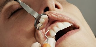 How Often Should You Go For A Dental Check-Up